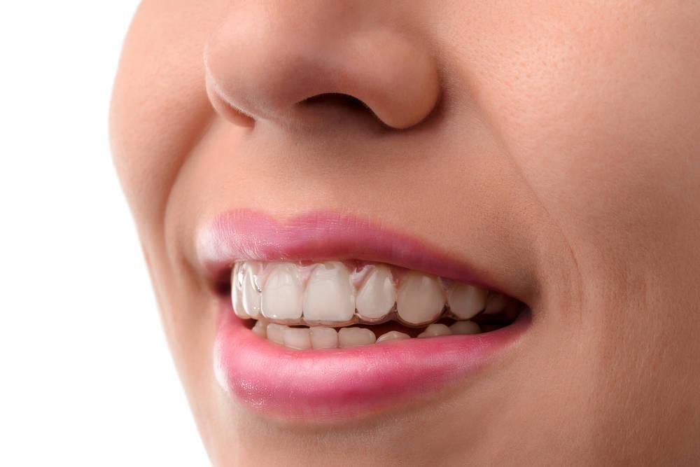 Invisalign, lo último en ortodoncias
