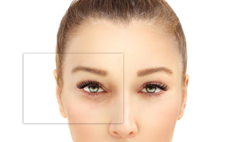 Blefaroplastia, rejuvenece tu mirada de forma natural